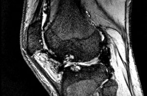 The knee of someone with Haemophilia